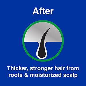 After Vitamin E & Coconut Hair Oil