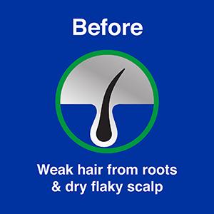 Before Vitamin E & Coconut Hair Oil