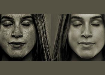 How to Fix Sun Damaged Skin