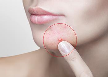 Help To Treat Acne