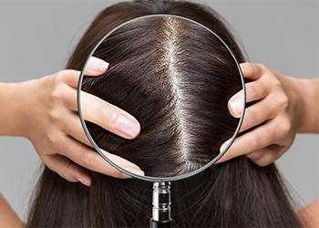 Coconut Oil for Hair Loss