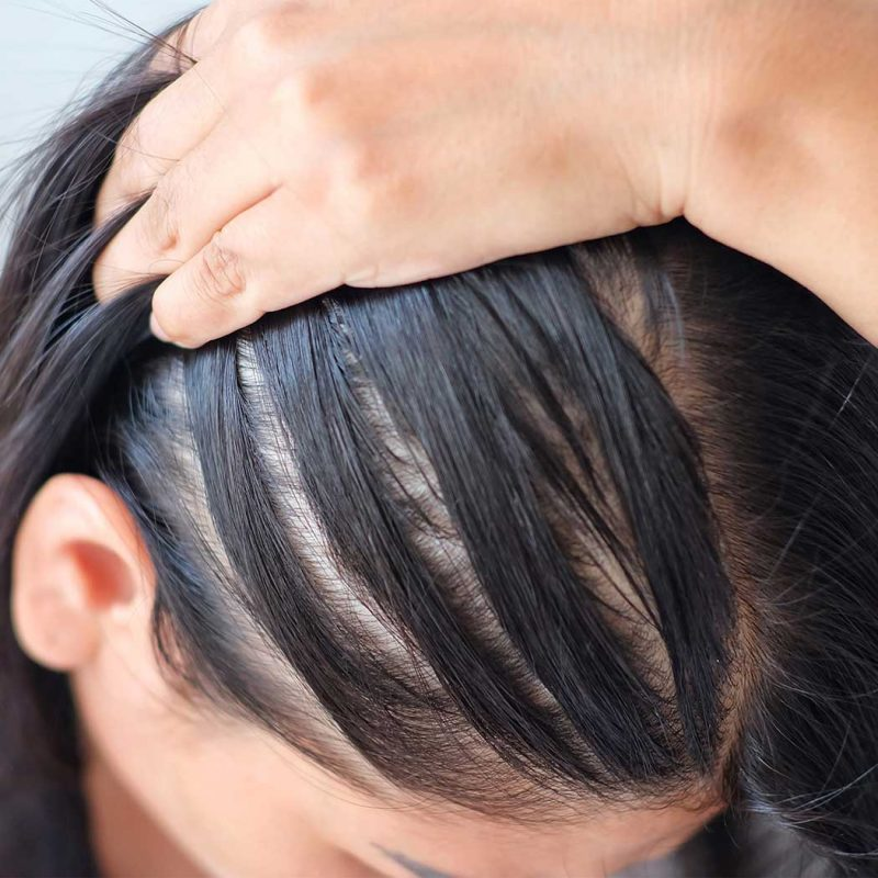 Thinning Across the Whole Head